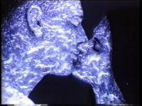 Metod Frlic - Svetloba kože / Brightness of Skin